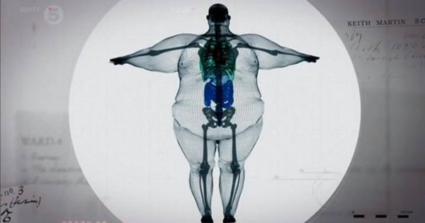 Skeleton of the man of 400 pounds